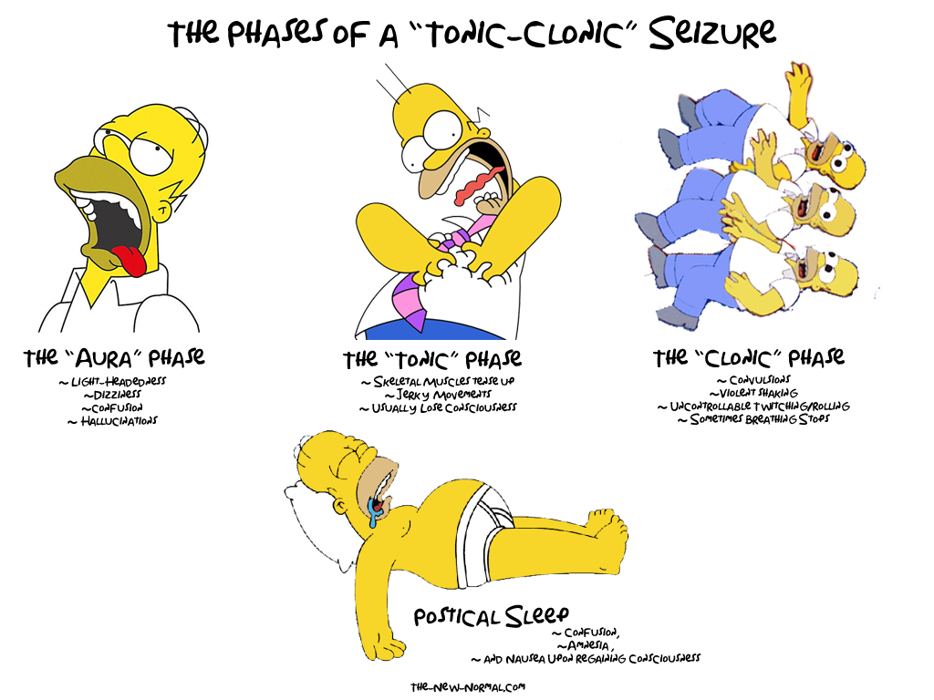 The Phases of a Tonic Clonic Seizure is a funny graphic explaining the seizure with pictures of homer simpson in different positions.